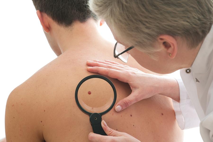 bigstock-Dermatologist-Examines-A-Mole-39808702
