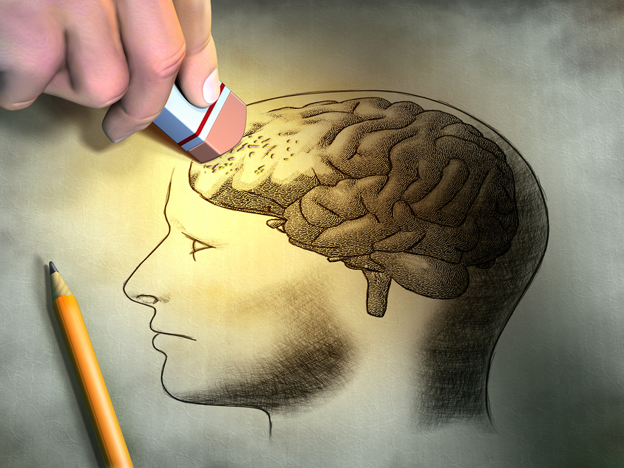Cognitive-Deterioration